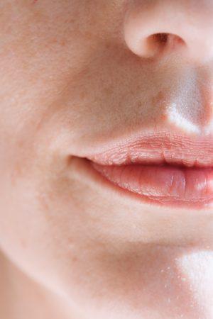 dry lips dr alek nikolic